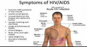 HIV symptoms in men